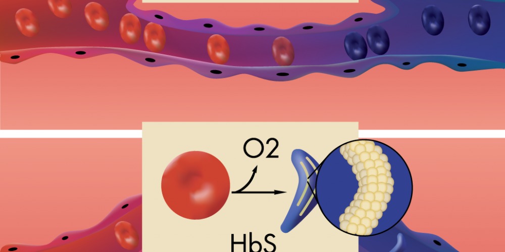 Medical illustration of sickle cell anemia.